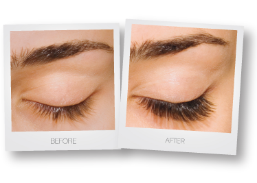 eyelash-extensions-before-after